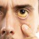 Julho Amarelo: entenda as principais formas de transmissão e como se prevenir das hepatites virais